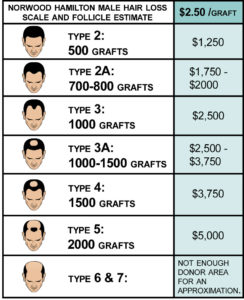 Male-Hair-Loss-Cost-Scale-2